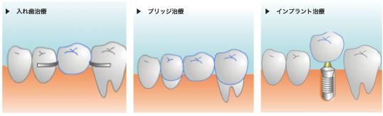 入れ歯治療 ブリッジ治療 インプラント治療