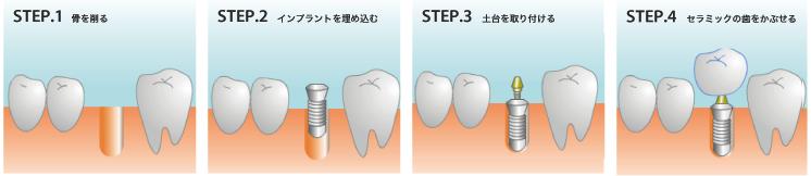 STEP.1 骨を削る STEP.2 インプラントを埋め込む STEP.3 土台を取り付ける STEP.4 セラミックの歯をかぶせる